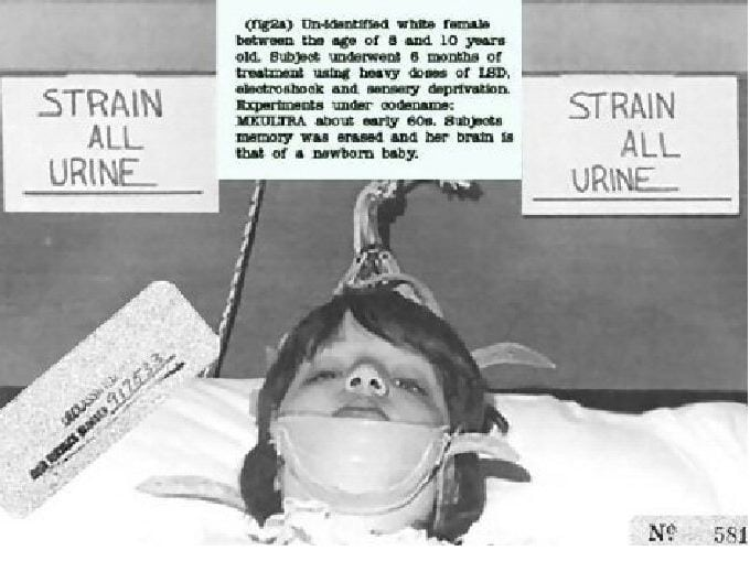 """Declassified picture of a young MK-ULTRA subject, 1961. The caption says: """"Unidentified White female between the age of 8 and 10 years old. Subject underwent 6 months of treatment using heavy doses of LSD, electroshock and sensory deprivation. Experiments under codename: MKULTRA about early 60s. Subject's memory was erased and her brain is that of a newborn baby."""""""